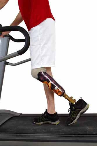 A person with a prosthetic leg on a treadmill